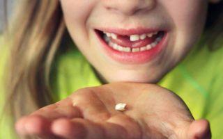 К чему снится выпадение зубов во сне: трактовки сонников