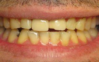 К чему снятся зубы желтые