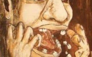 Cонник — шатается зуб