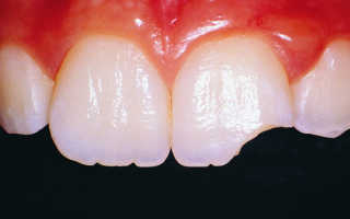 К чему снится зуб сломанный