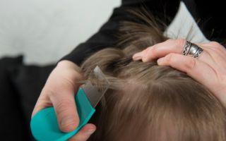К чему снится вши в волосах у ребенка