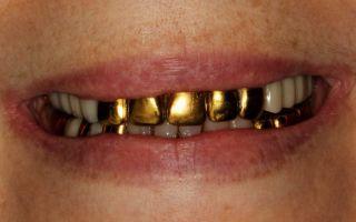 К чему снятся зубы золотые