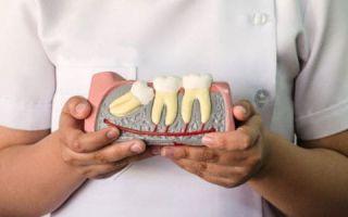 Сонник — зуб вырос